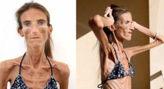 Δείτε πως ήταν αυτή η γυναίκα ΠΡΙΝ την τροφική ανορεξία και ακούστε τι λέει για το πρόβλημα της