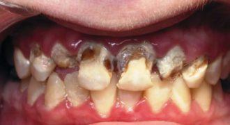 ΒΙΝΤΕΟ-ΣΟΚ: Δείτε στο μικροσκόπιο τι κάνουν τα αναψυκτικά στα δόντια σας