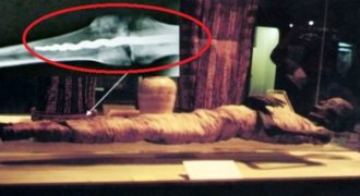 Απρόσμενη ανακάλυψη επιστημόνων σε μουμιοποιημένο σώμα Αιγύπτιου ιερέα. Του είχαν τοποθετήσει χειρουργικά μεταλλικό εμφύτευμα στο πόδι πριν από 2.600 χρόνια!…
