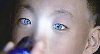 Το αγόρι που τρέλανε την επιστημονική κοινότητα: Έχει την ικανότητα να βλέπει στο απόλυτο… σκοτάδι με μάτια που λάμπουν!