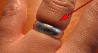 Κόλλησε το δαχτυλίδι στο δάχτυλο; Ορίστε ένα πανέξυπνο κόλπο για να το βγάλετε στο λεπτό!