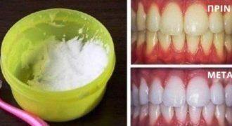 Μπορείς να λευκάνεις τα δόντια σου με φυσικό τρόπο χρησιμοποιώντας μόλις 2 υλικά που έχεις στο ντουλάπι σου!