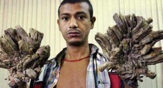 Σπάνια ασθένεια: Ο άνθρωπος με τα χέρια «δέντρου» ζητά απελπισμένα θεραπεία (Βίντεο)