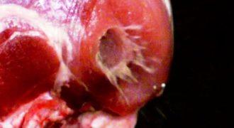Δείτε τι συμβαίνει στο ανθρώπινο σώμα όταν δέχεται σφαίρα..(Video)