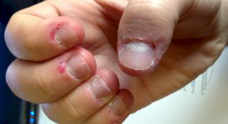 Πειράζετε το δέρμα γύρω από τα νύχια σας; Σταματήσετε Αμέσως και ο Λόγος είναι Αυτός…