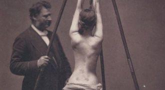 ΑΝΑΤΡΙΧΙΑΣΤΙΚΟ ΒΙΝΤΕΟ με ιατρικές πρακτικές πριν από έναν αιώνα! ΠΡΟΣΟΧΗ! Εικόνες ΣΟΚ!