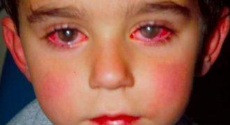 Γονείς ΠΡΟΣΟΧΗ: 8χρονος έχασε την όρασή του από ένα Παιχνίδι που ΟΛΟΙ έχουμε αγοράσει στα Παιδιά μας!