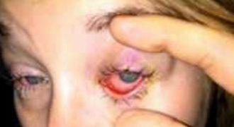 Τα Μάτια του έγιναν Κατακόκκινα και ο Πόνος ήταν Αφόρητος. Μόλις τον εξέτασαν οι Γιατροί, Πάγωσαν με ΑΥΤΟ που αντίκρισαν!