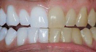 Ανακάτεψε 2 υλικά και τα έβαλε στα δόντια του. Το Αποτέλεσμα φανταστικό! Δείτε και μόνοι σας !