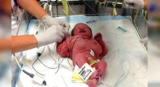 Νεαρή Μητέρα γεννάει Κοριτσάκι αλλά όταν οι Γιατροί το είδαν από το Λαιμό και κάτω, έπαθαν ΣΟΚ με αυτό που Αντίκρισαν