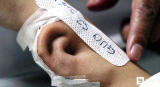 Ξύπνησε από το Κώμα και Είδε ένα Αυτί να Φυτρώνει στο Χέρι του. Τότε ο Γιατρός του Αποκάλυψε την Σοκαριστική Αλήθεια!