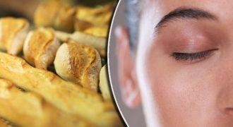 Τροφικές δυσανεξίες: Αυτό το σημάδι στο πρόσωπο ίσως δείχνει πρόβλημα με αυτά που τρώτε (Βίντεο)